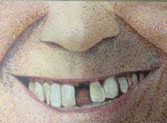 Dental 2